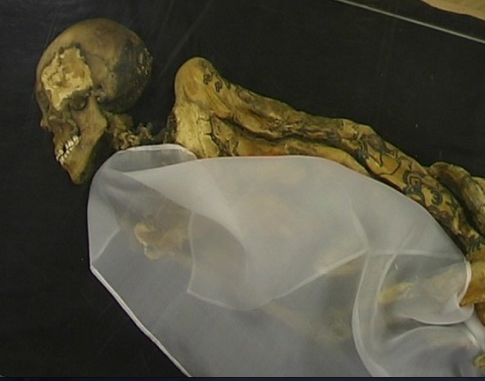 She died of Breast Cancer 2500 years ago. She self medicated with marijuana!